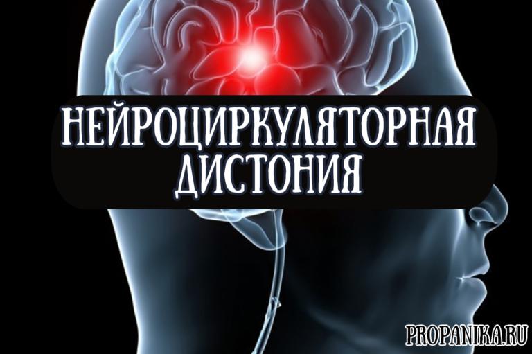 Вегето-сосудистая дистония (ВСД) по гипертоническому типу ...